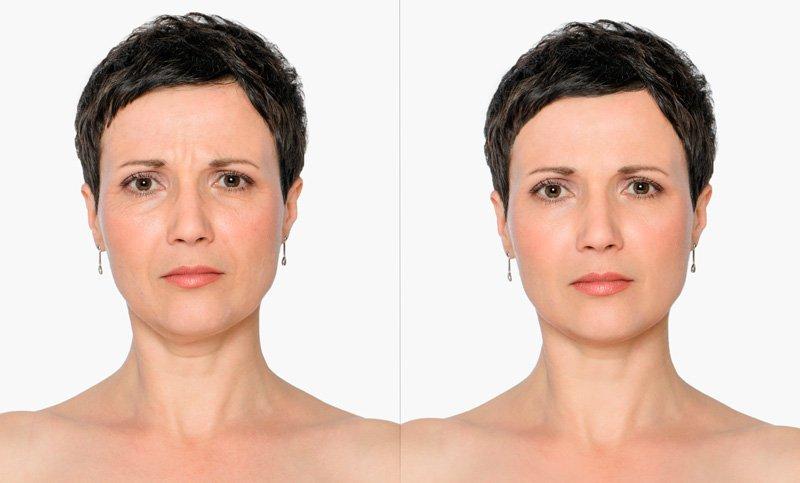 Botoks - prej in potem