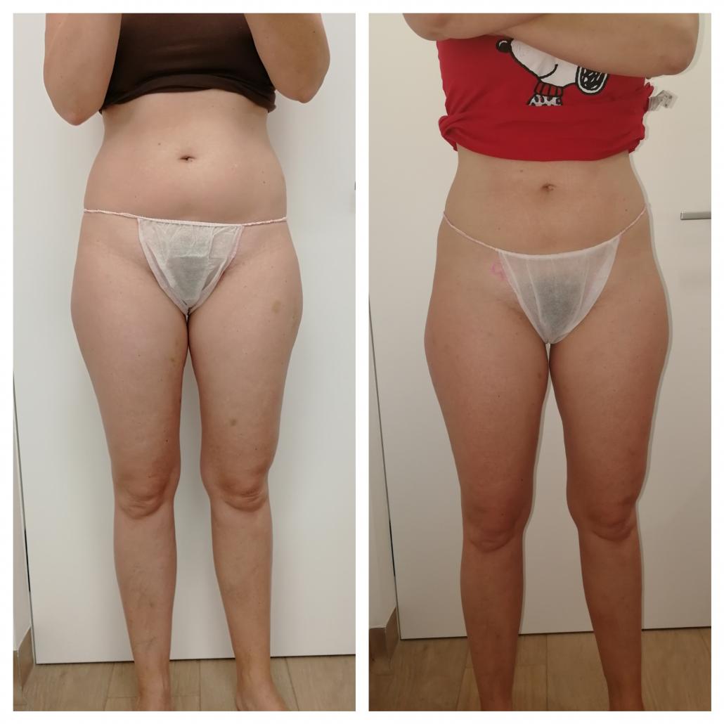 Pred in po maderoterapiji